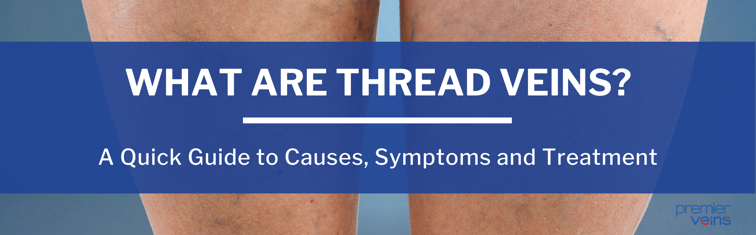 What Are Thread Veins?