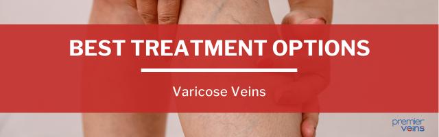 Varicose Veins - Best Treatment Options