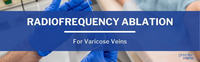 What Is Radiofrequency Ablation for Varicose Veins?