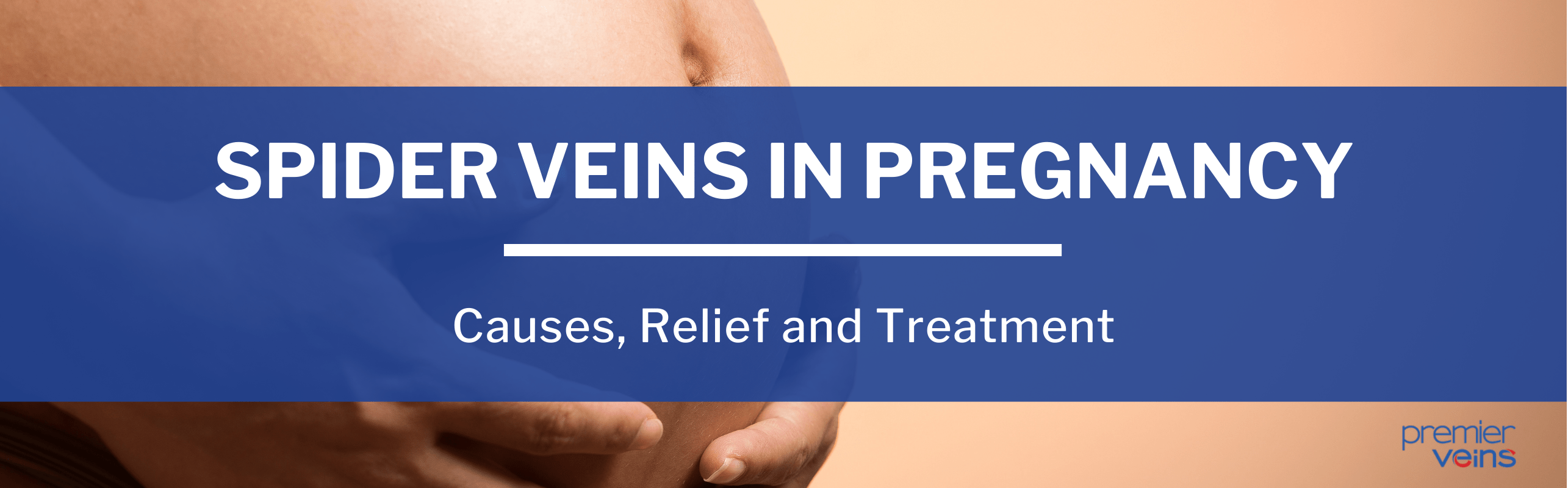 What Causes Spider Veins in Pregnancy, and How Can You Treat Them?