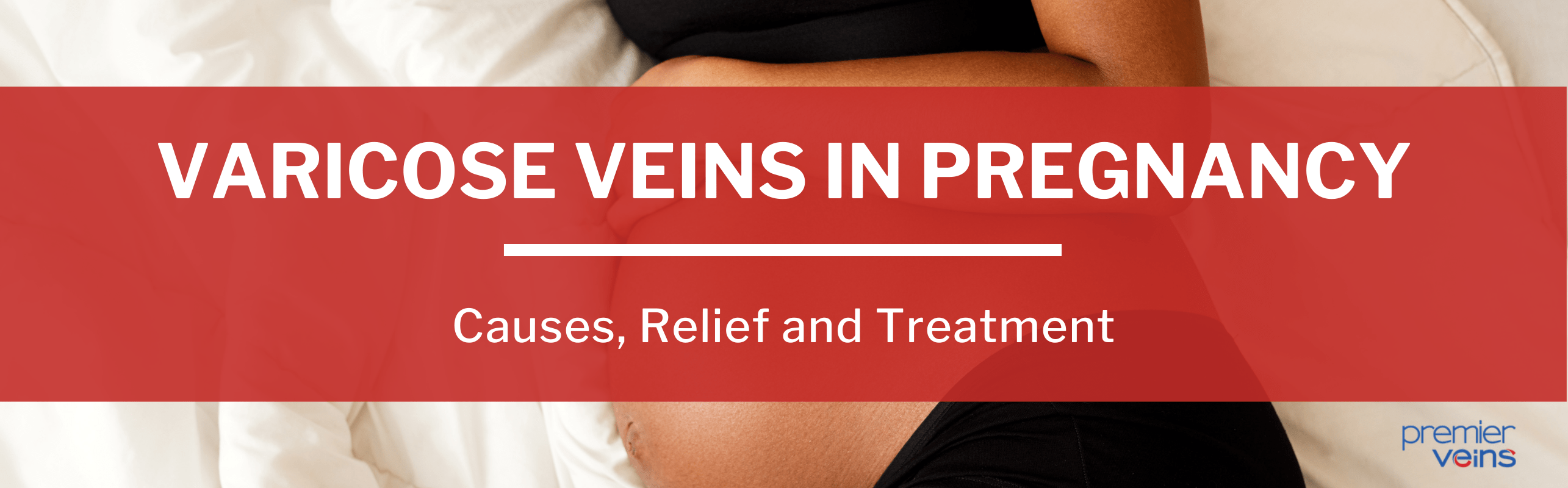 Varicose Veins in Pregnancy: Causes, Relief and Treatment